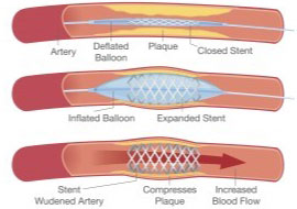 Balloon Angioplasty Stents