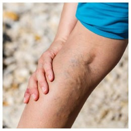 chronic venous insufficiency