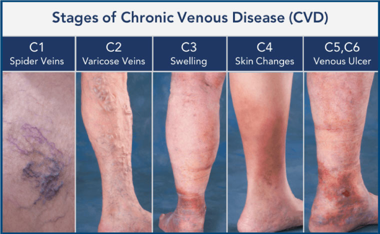 stages chronic venous disease