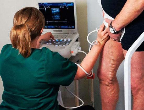 varicose vein free screening offer florida usa